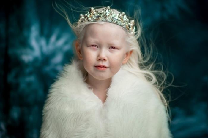 Девочка-альбинос покоряет якутские соцсети