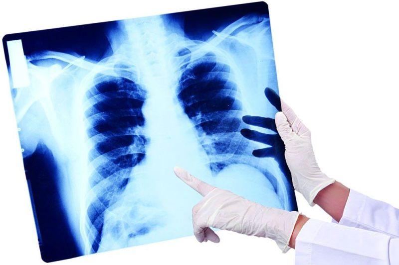 Главный внештатный пульмонолог Якутии: «В настоящее время есть четкие алгоритмы лечения пневмонии»
