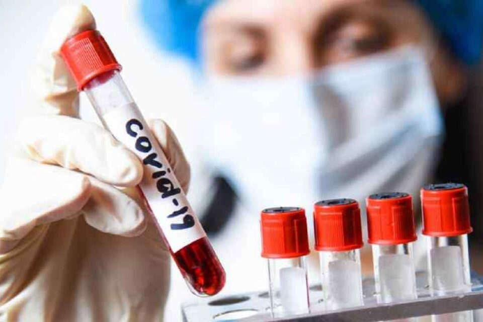 В Якутии на 17 августа выявлен 141 новый случай коронавирусной инфекции