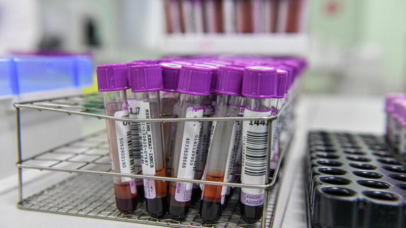 Ученые определили период сохранения антител у переболевших COVID-19